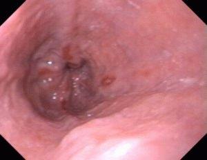 Воспалительный процесс слизистой пищевода