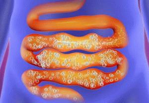 Болезнь кишечника