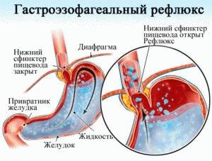 ГЭРБ болезнь