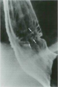 Рентгенографическое исследование пищевода
