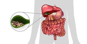 Инфекционное воспаление в желчном пузыре