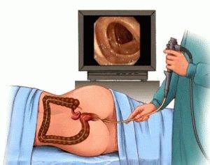 Обследование толстой кишки