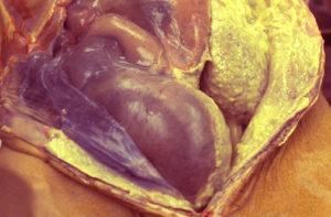 Гнойный перитонит