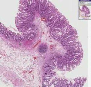 Гистология полипа
