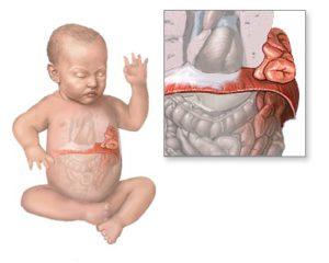 Грыжа пищевода у ребёнка