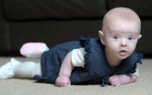Бледный покров тела у ребёнка
