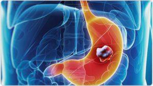 Онкология желудка