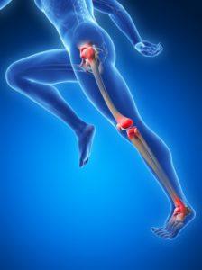 Ортопедическое нарушение