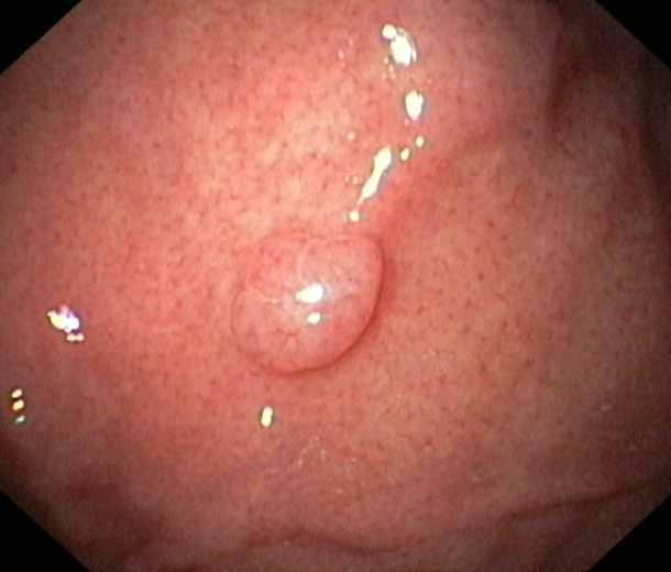 Гипертрофический полип желудка