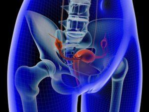 Заболевание женских половых органов