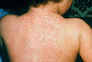 Симптомы менингита у ребёнка