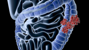 Диагностика кишечника