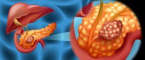 Раковые опухоли поджелудочной железы