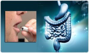 Капсульная диагностика желудка