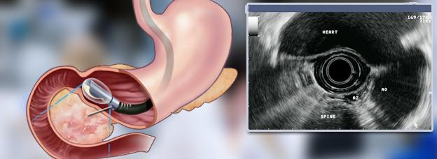 Эндоскопическое узи поджелудочной железы