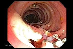 Разрыв кишечника