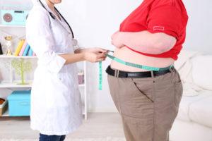 Ожирение больного