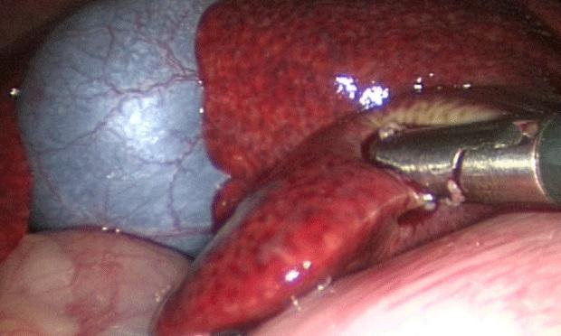 Биопсия печени отзывы больных — Лечим печень