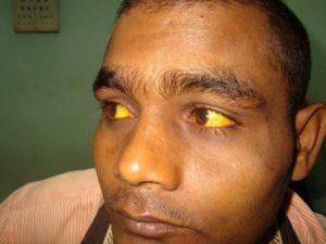 Гемолитическая желтуха