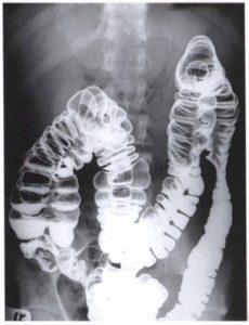 Контрастирование рентгена