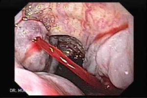 Кровоточащие сосуды желудка
