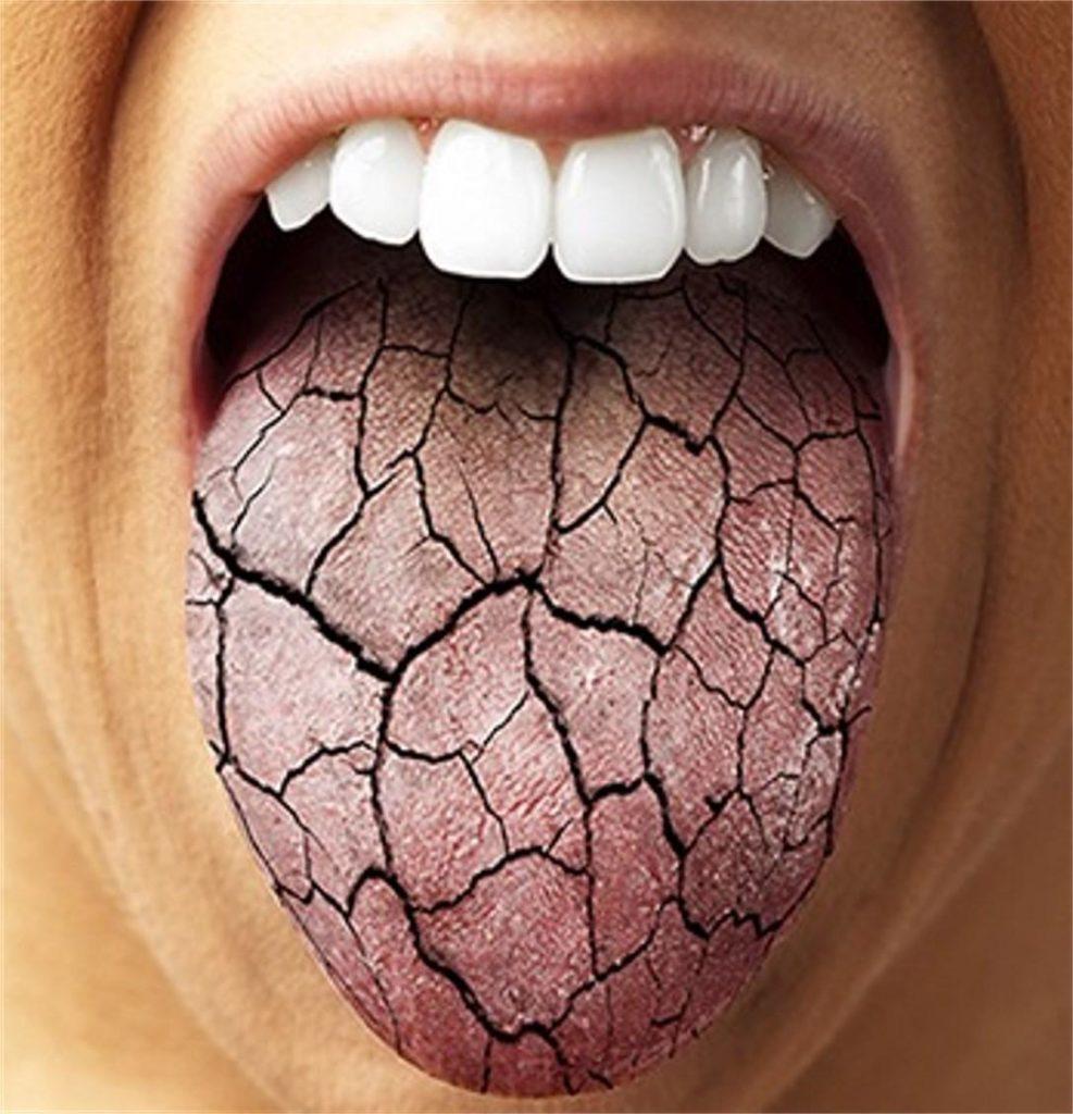 Запах тухлых яиц изо рта: причины, симптомы и лечение