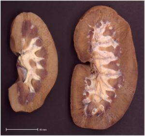 Гипертрофия внутреннего органа