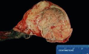 Орхоэпидидимит у мужчины