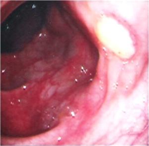 Язва тонкого кишечника