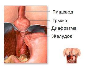 Заболевание диафрагмальная грыжа
