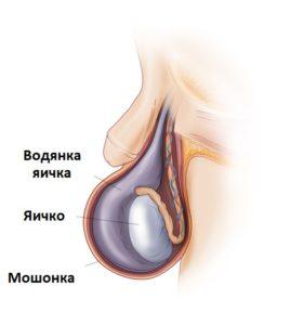 Болезнь водянка оболочек яичек