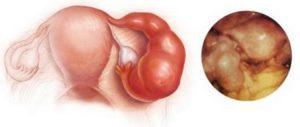 Воспаление в маточных трубах и яичниках