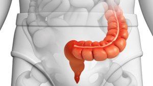 Воспаление сигмовидной кишки толстого кишечника