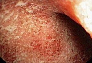 Колит инфекционного типа