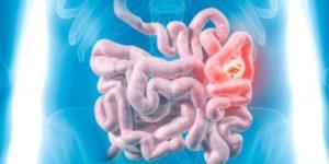 Опухоль тонкого кишечника