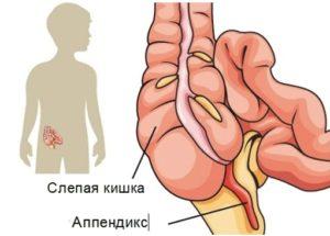 Аппендикс располагается в животе