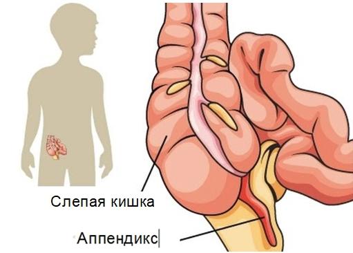 Подозрение на аппендицит: что делать, к какому врачу обращаться