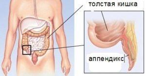 Аппендикс в животе человека