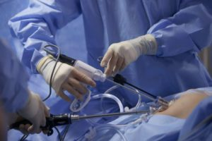 Лапароскопия у человека