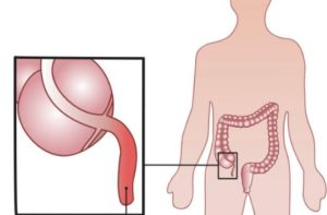 Аппендикс в теле человека