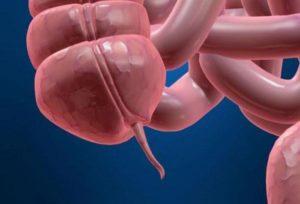 Аппендикс в кишечном тракте человека