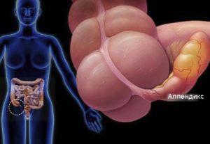 Аппендикс в нашем теле