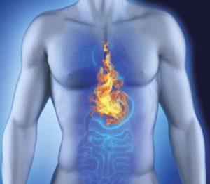 Изжога в груди