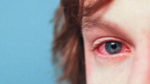 Проявления аллергии у человека