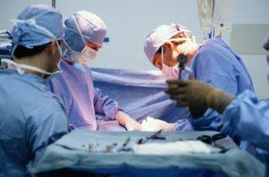 Операция по дивертикулоэктомии