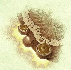 Дивертикулы в стенке кишечника