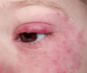 Аллергические прыщи и красные глаза