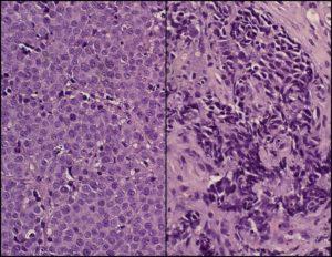 Перерождение здоровых клеток в раковые