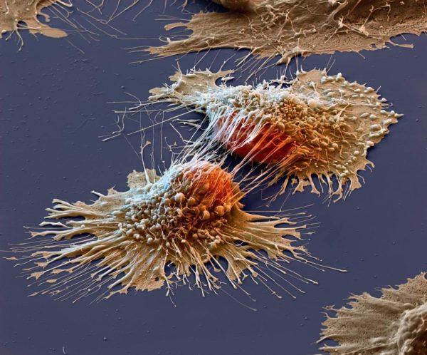 Раковая опухоль под микроскопом