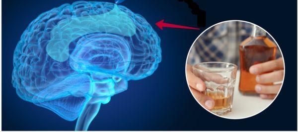 Алкоголь влияет на человеческий мозг